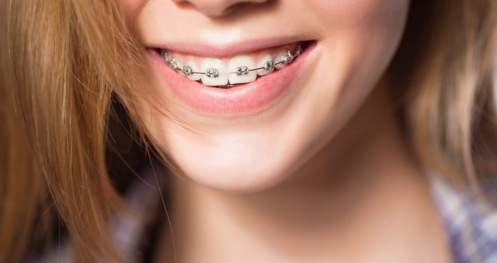 Dental Braces From Muswell Hill Smile